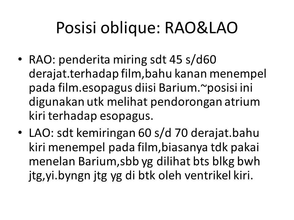 Posisi oblique: RAO&LAO