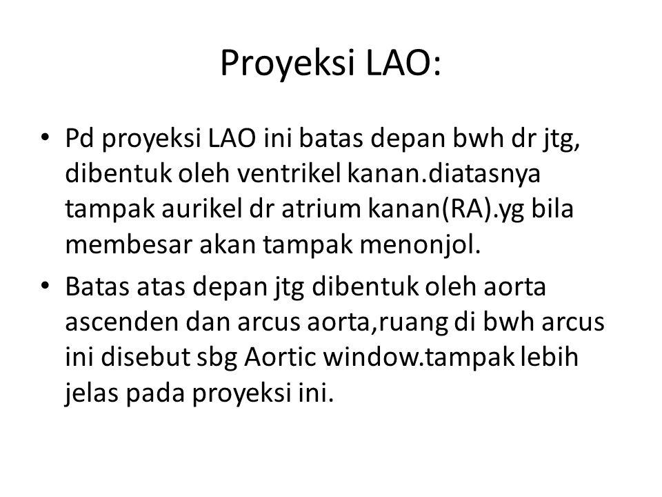 Proyeksi LAO: