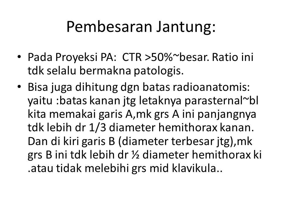 Pembesaran Jantung: Pada Proyeksi PA: CTR >50%~besar. Ratio ini tdk selalu bermakna patologis.