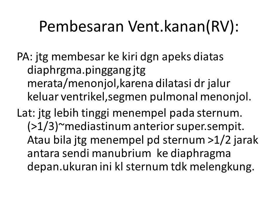 Pembesaran Vent.kanan(RV):