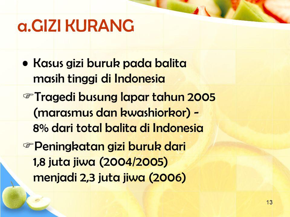 a.GIZI KURANG Kasus gizi buruk pada balita masih tinggi di Indonesia