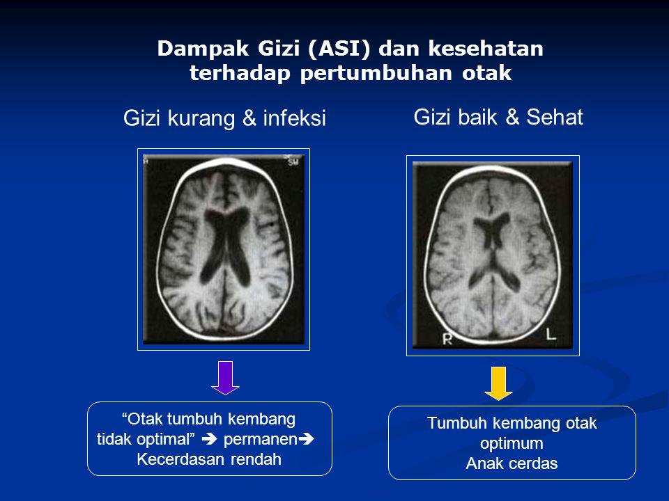 Dampak Gizi (ASI) dan kesehatan terhadap pertumbuhan otak