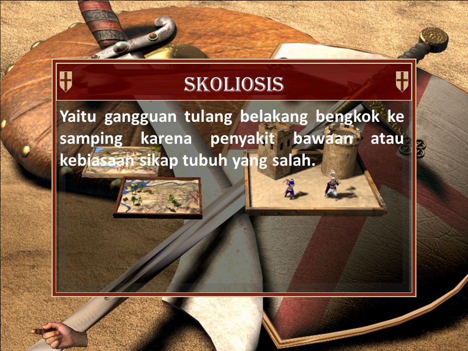skoliosis Yaitu gangguan tulang belakang bengkok ke samping karena penyakit bawaan atau kebiasaan sikap tubuh yang salah.