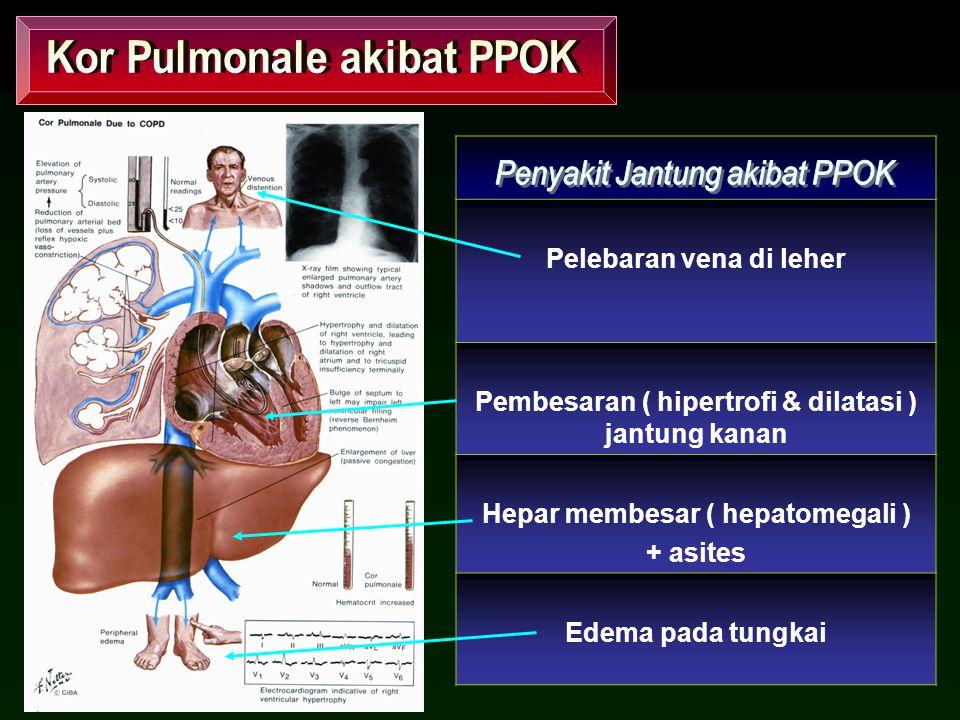 Kor Pulmonale akibat PPOK