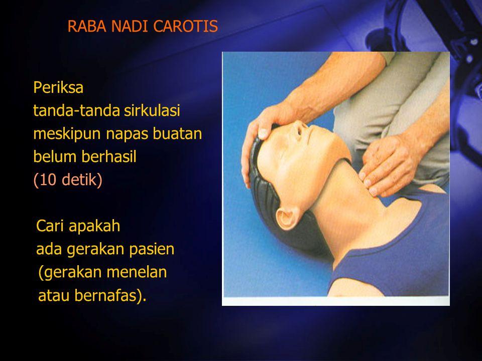 RABA NADI CAROTIS Periksa. tanda-tanda sirkulasi. meskipun napas buatan. belum berhasil. (10 detik)