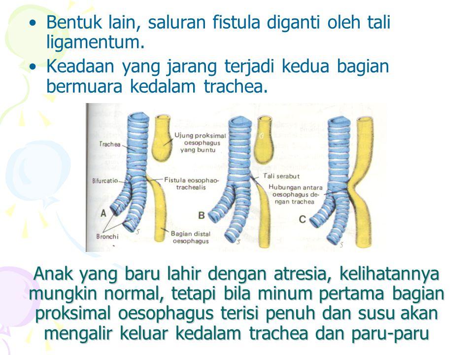Bentuk lain, saluran fistula diganti oleh tali ligamentum.