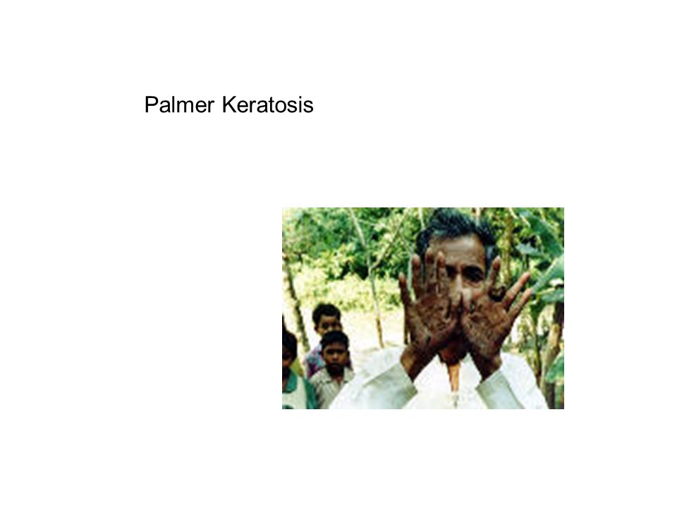 Palmer Keratosis