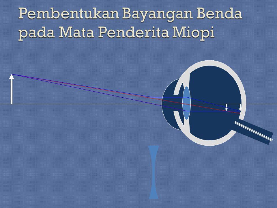 Pembentukan Bayangan Benda pada Mata Penderita Miopi