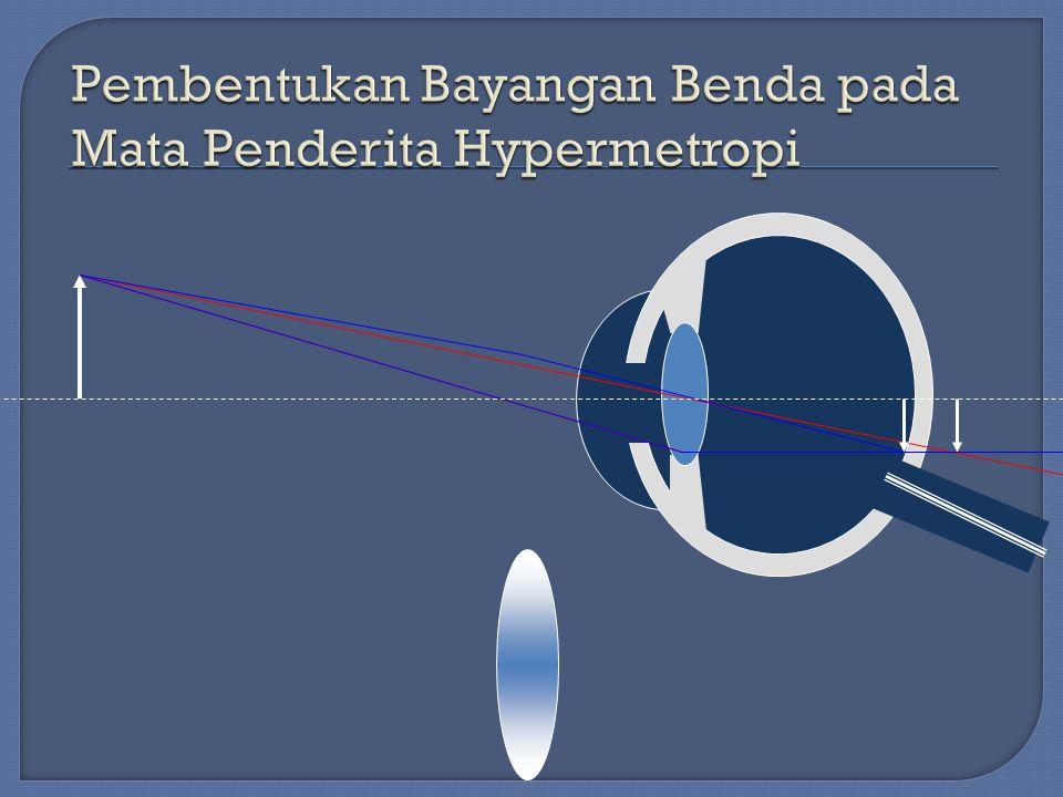 Pembentukan Bayangan Benda pada Mata Penderita Hypermetropi