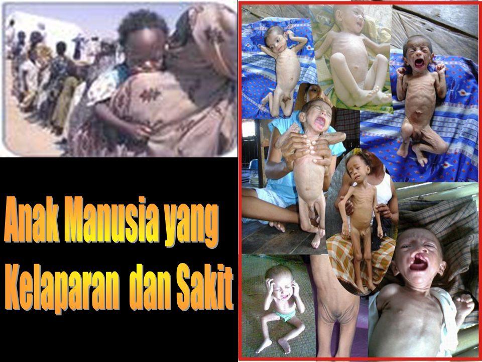Anak Manusia yang Kelaparan dan Sakit