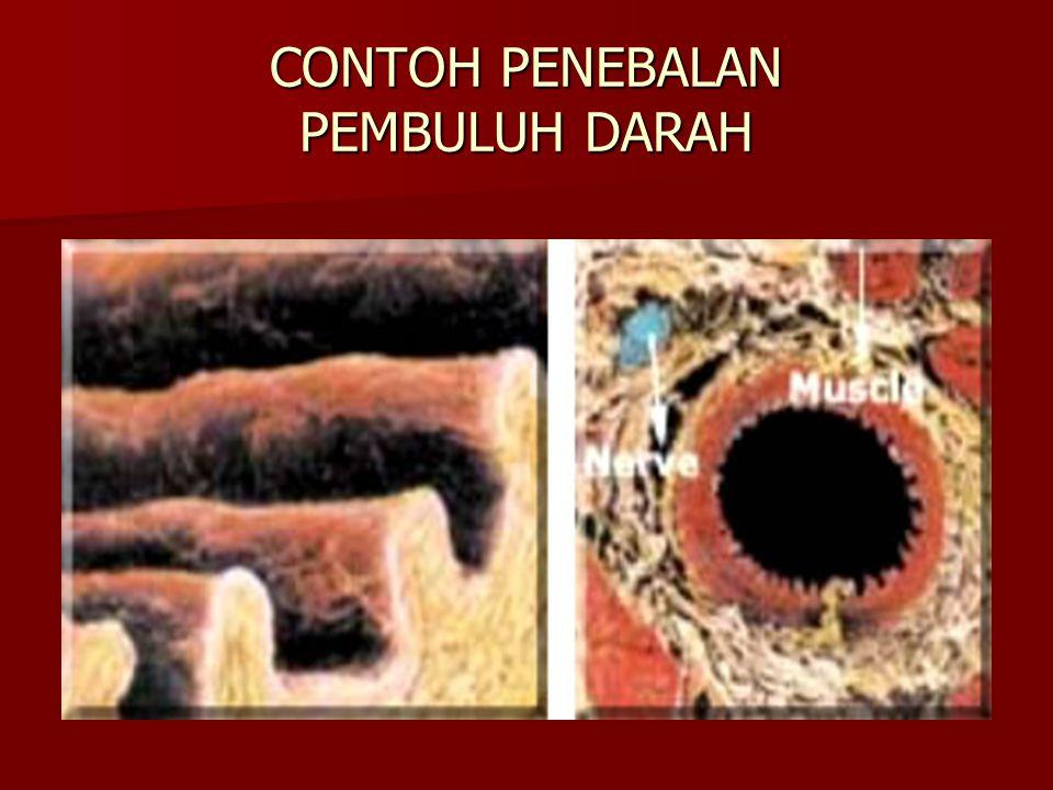 CONTOH PENEBALAN PEMBULUH DARAH