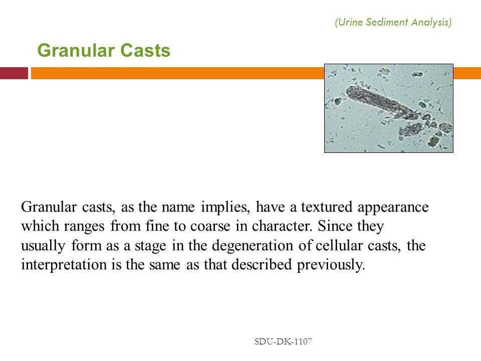 (Urine Sediment Analysis)