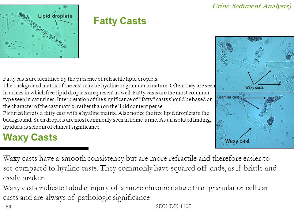 Urine Sediment Analysis)