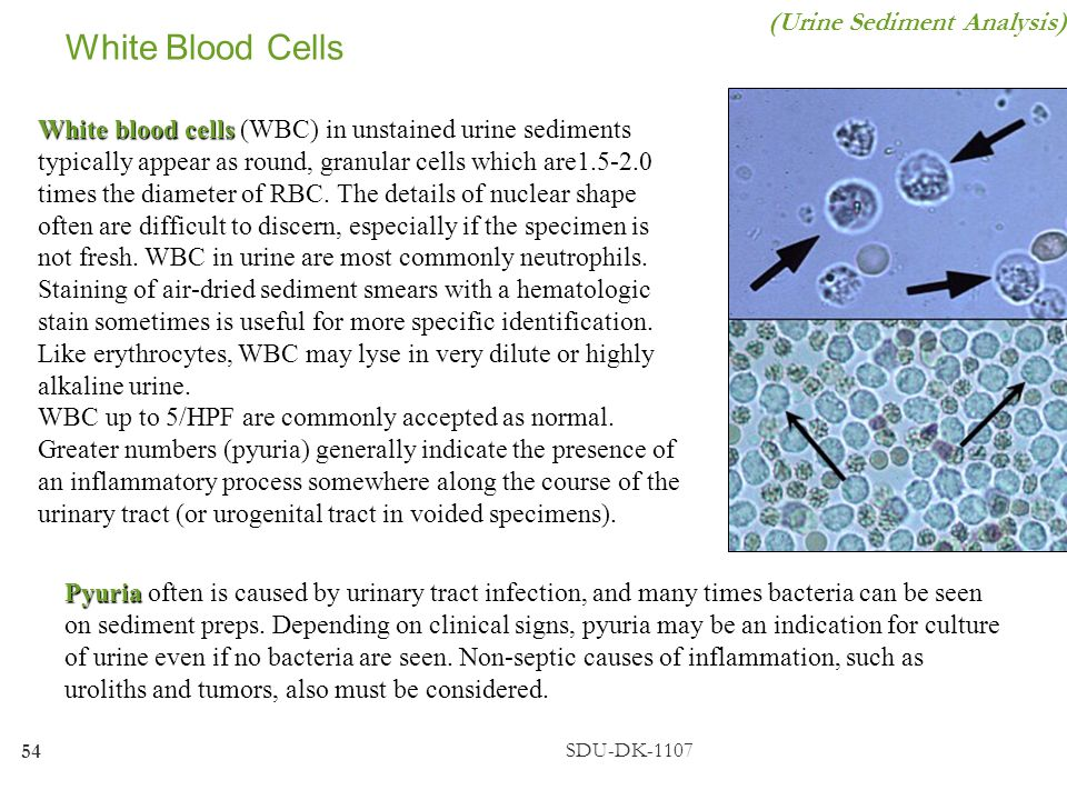 White Blood Cells (Urine Sediment Analysis)