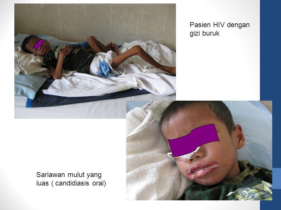 Pasien HIV dengan gizi buruk