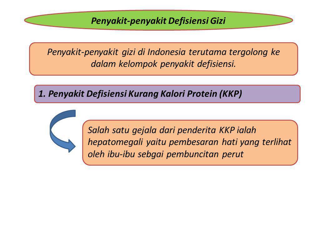 Penyakit-penyakit Defisiensi Gizi