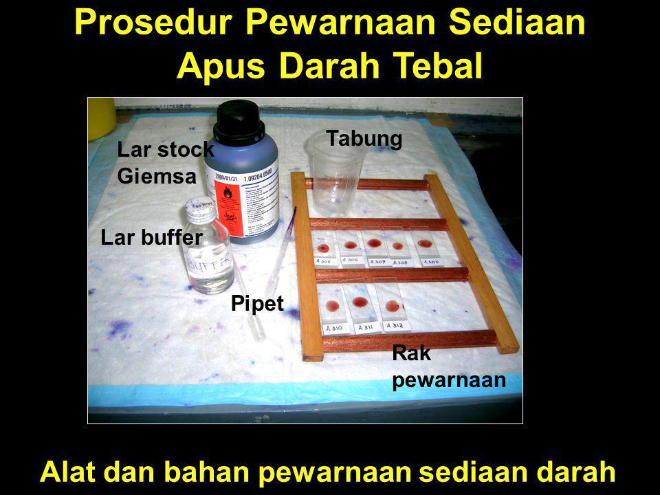 Prosedur Pewarnaan Sediaan Apus Darah Tebal