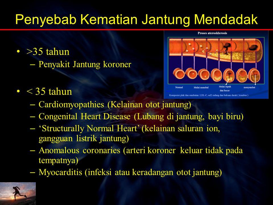 Penyebab Kematian Jantung Mendadak
