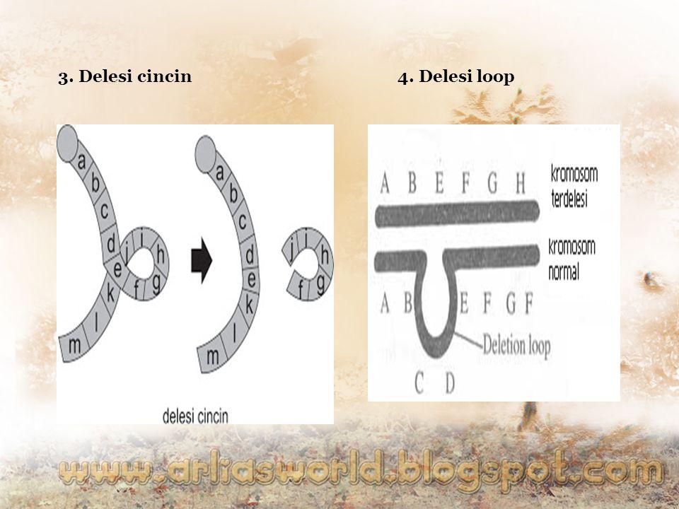 3. Delesi cincin 4. Delesi loop