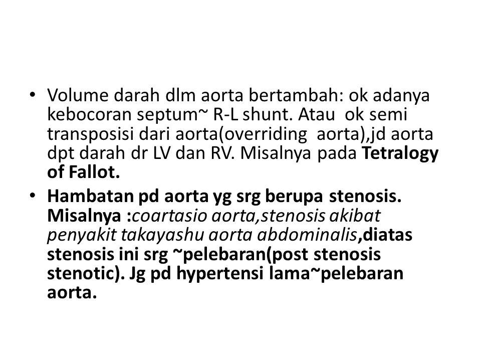 Volume darah dlm aorta bertambah: ok adanya kebocoran septum~ R-L shunt. Atau ok semi transposisi dari aorta(overriding aorta),jd aorta dpt darah dr LV dan RV. Misalnya pada Tetralogy of Fallot.