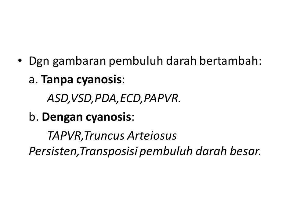 Dgn gambaran pembuluh darah bertambah: