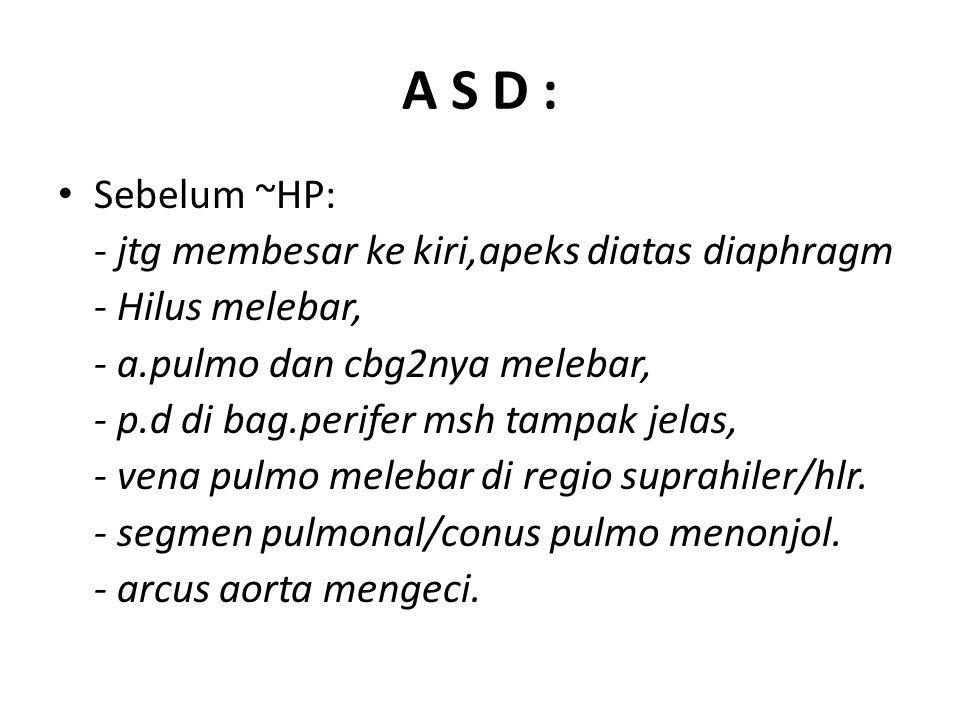 A S D : Sebelum ~HP: - jtg membesar ke kiri,apeks diatas diaphragm
