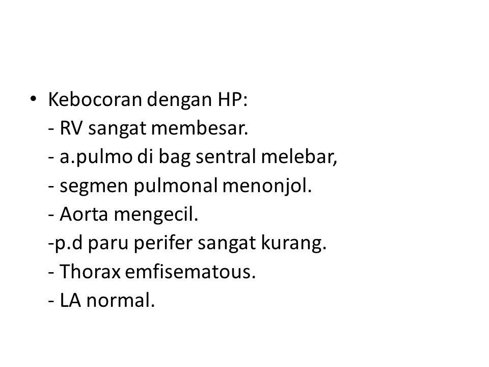 Kebocoran dengan HP: - RV sangat membesar. - a.pulmo di bag sentral melebar, - segmen pulmonal menonjol.