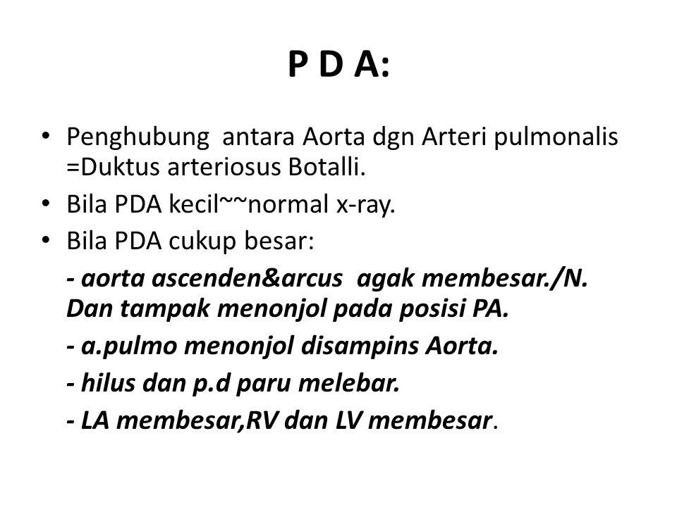 P D A: Penghubung antara Aorta dgn Arteri pulmonalis =Duktus arteriosus Botalli. Bila PDA kecil~~normal x-ray.
