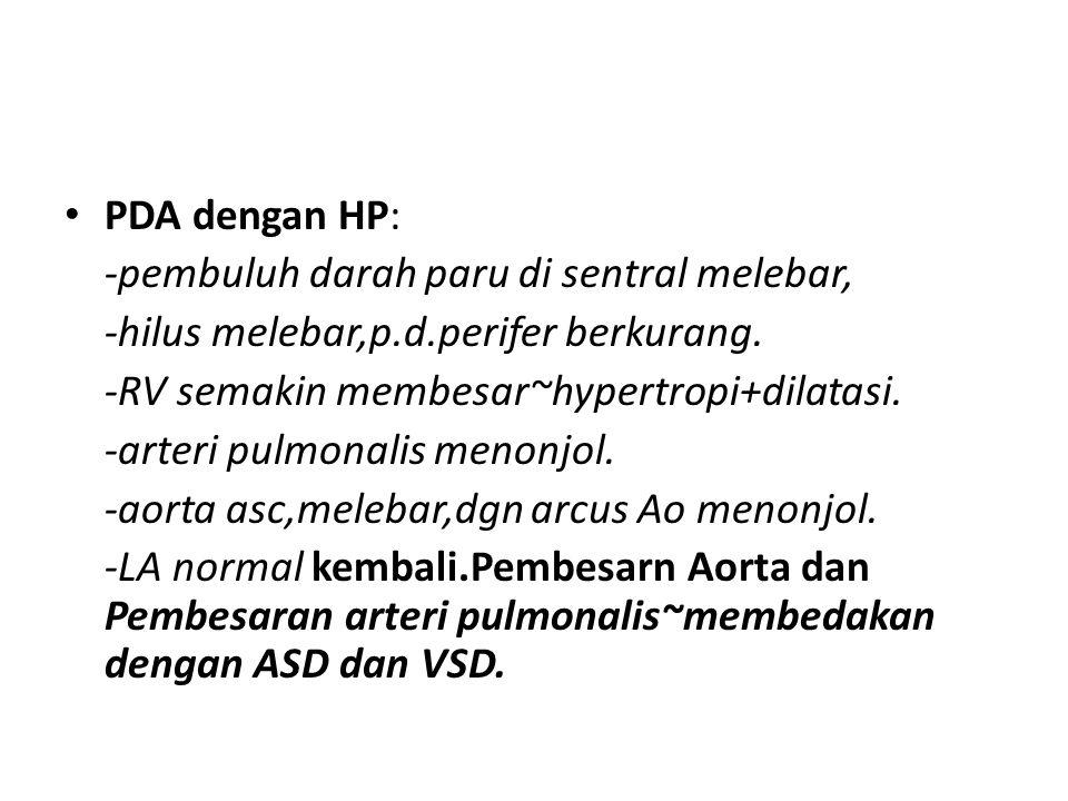 PDA dengan HP: -pembuluh darah paru di sentral melebar, -hilus melebar,p.d.perifer berkurang. -RV semakin membesar~hypertropi+dilatasi.