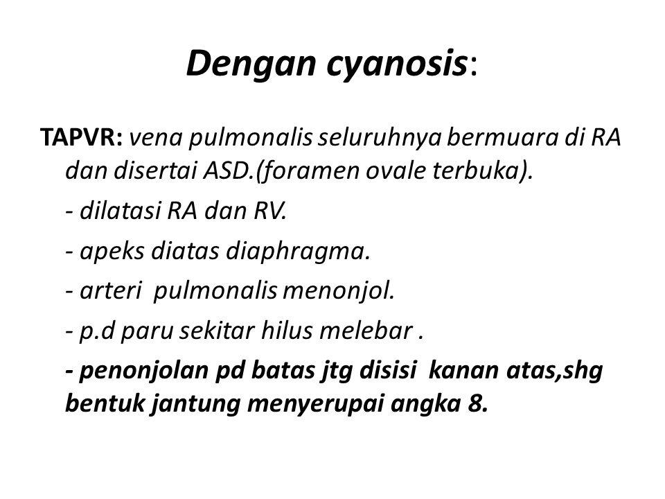 Dengan cyanosis: