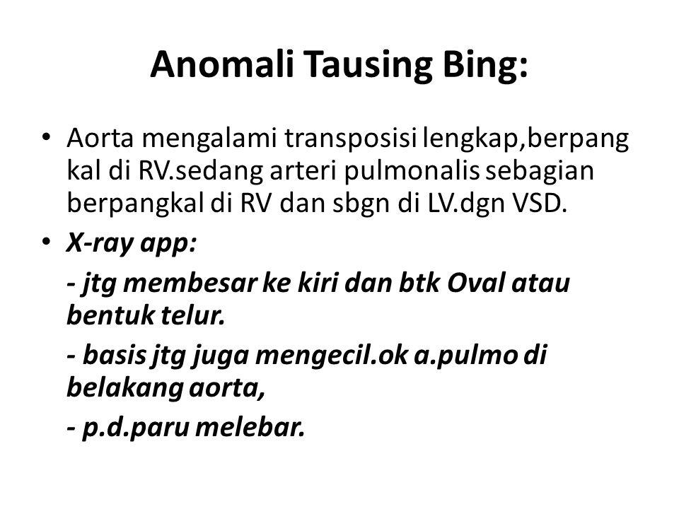 Anomali Tausing Bing: