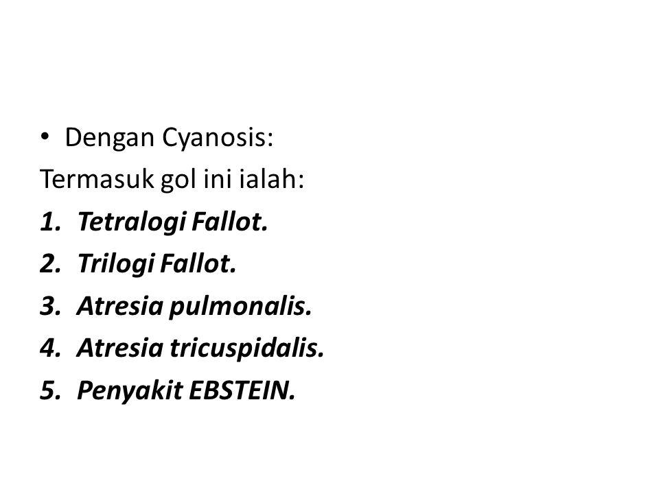 Dengan Cyanosis: Termasuk gol ini ialah: Tetralogi Fallot. Trilogi Fallot. Atresia pulmonalis. Atresia tricuspidalis.