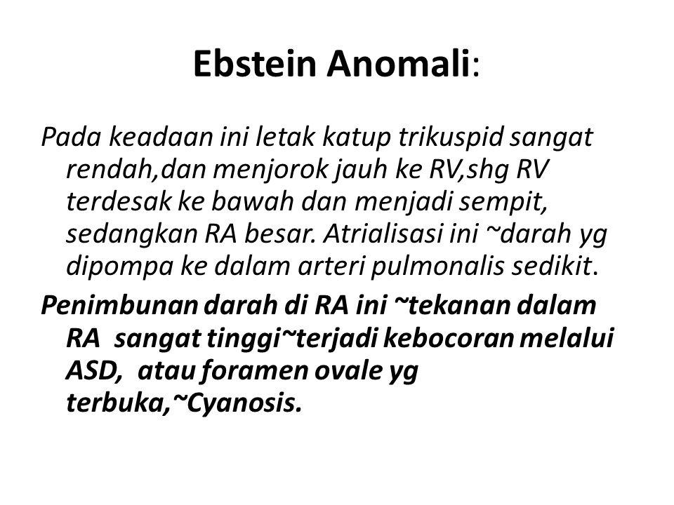Ebstein Anomali: