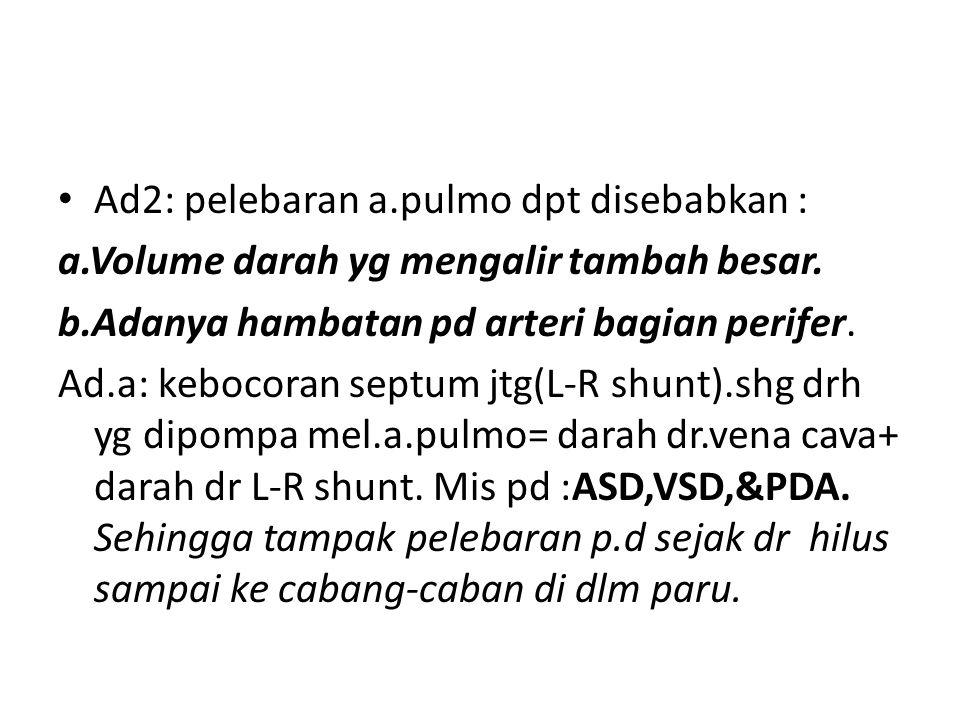 Ad2: pelebaran a.pulmo dpt disebabkan :