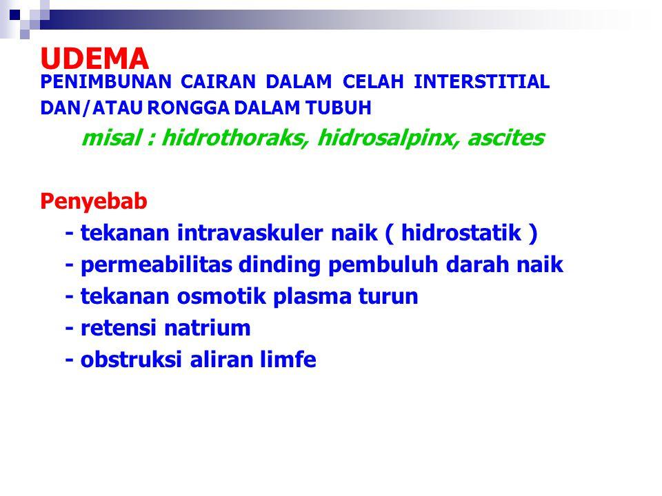 UDEMA Penyebab - tekanan intravaskuler naik ( hidrostatik )