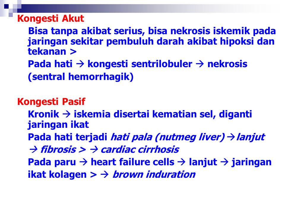 Kongesti Akut Bisa tanpa akibat serius, bisa nekrosis iskemik pada jaringan sekitar pembuluh darah akibat hipoksi dan tekanan >