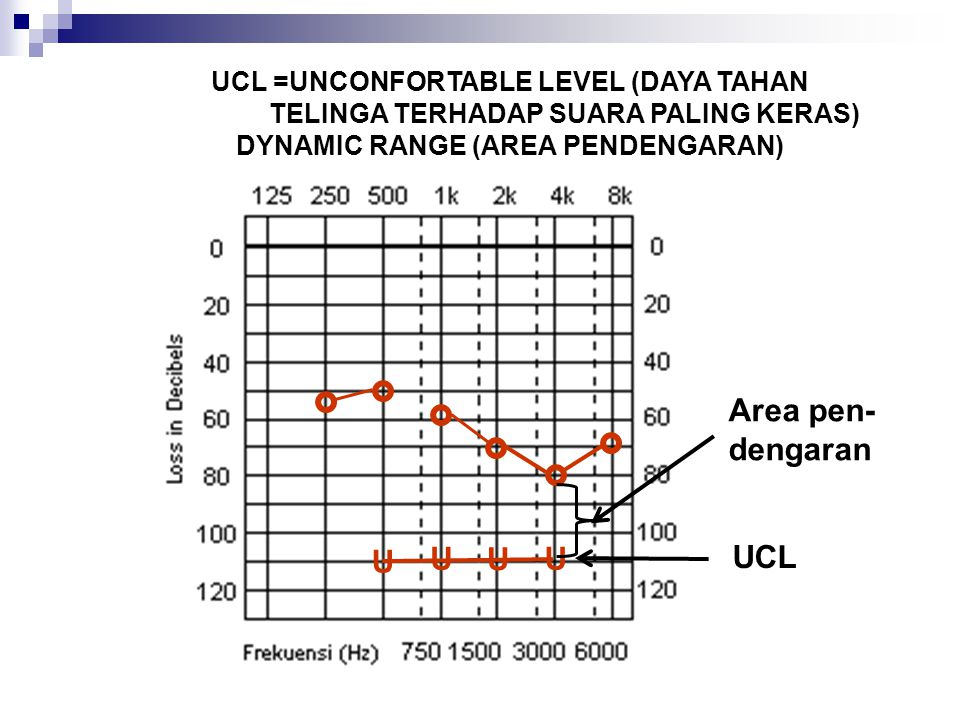 Area pen- dengaran U U U U UCL UCL =UNCONFORTABLE LEVEL (DAYA TAHAN