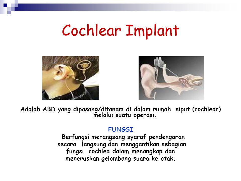 Cochlear Implant Adalah ABD yang dipasang/ditanam di dalam rumah siput (cochlear) melalui suatu operasi.