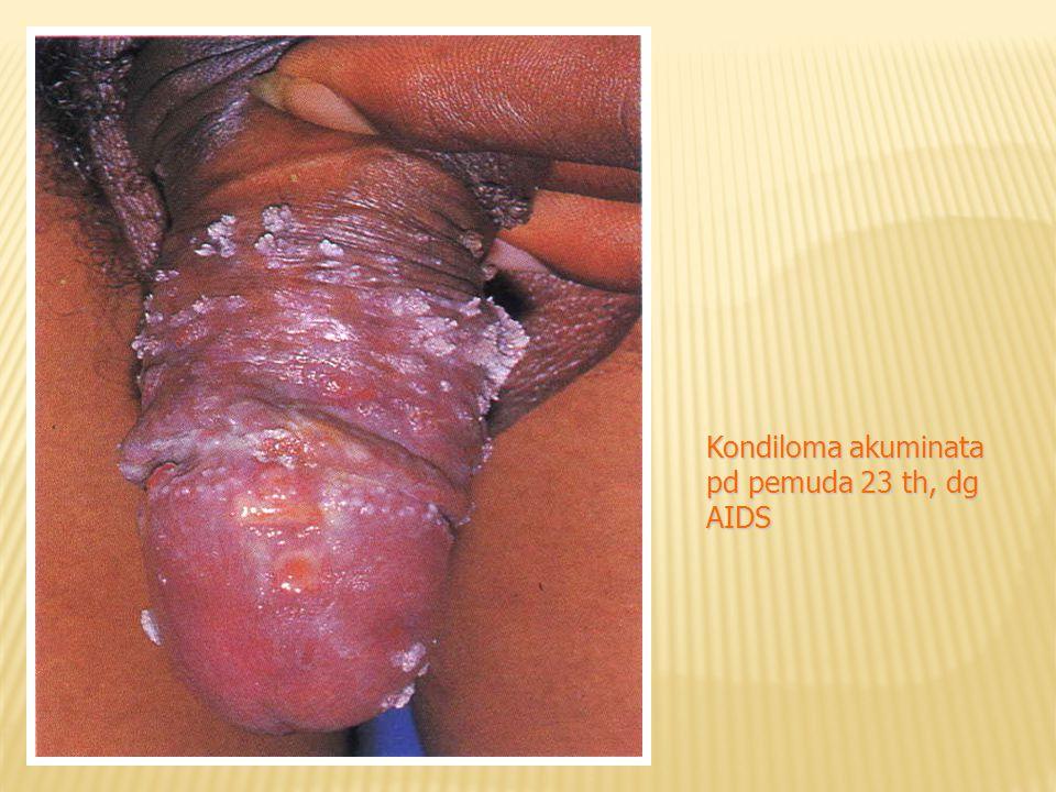 Kondiloma akuminata pd pemuda 23 th, dg AIDS
