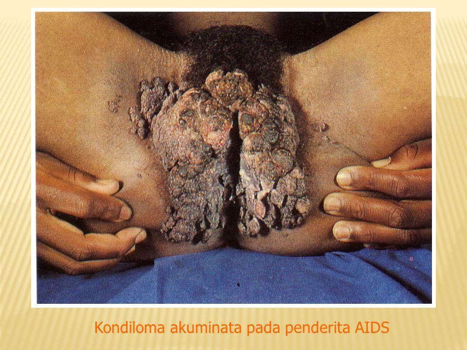 Kondiloma akuminata pada penderita AIDS