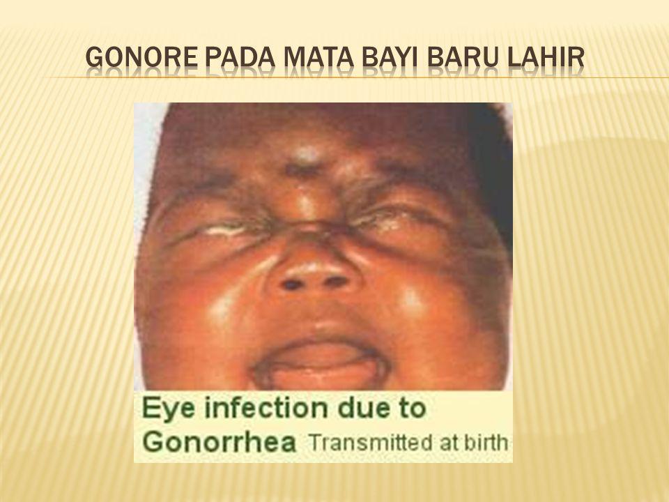 Gonore pada mata bayi baru lahir
