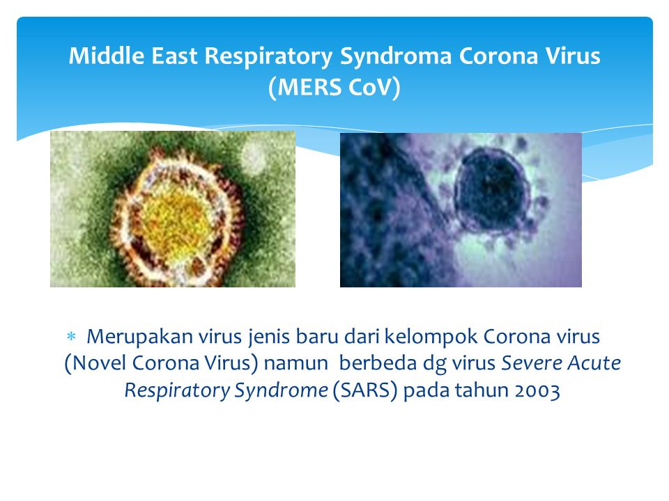 Middle East Respiratory Syndroma Corona Virus (MERS CoV)