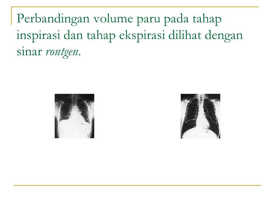 Perbandingan volume paru pada tahap inspirasi dan tahap ekspirasi dilihat dengan sinar rontgen.