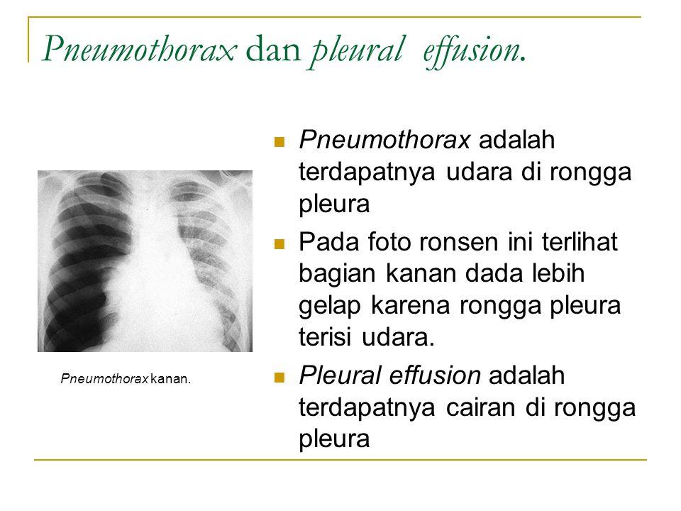 Pneumothorax dan pleural effusion.