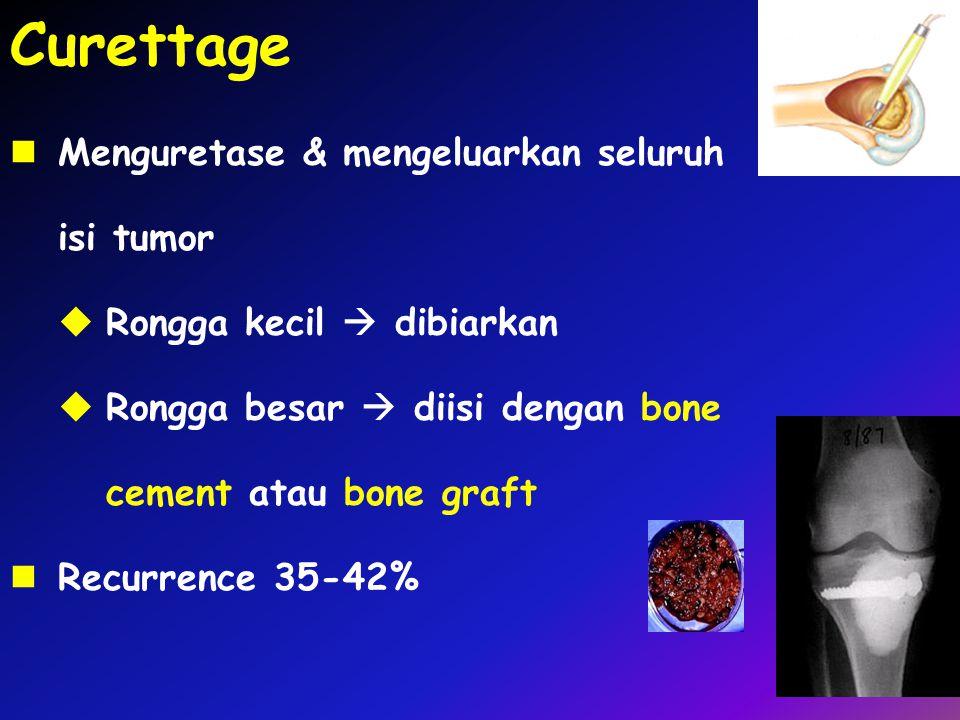 Curettage Menguretase & mengeluarkan seluruh isi tumor