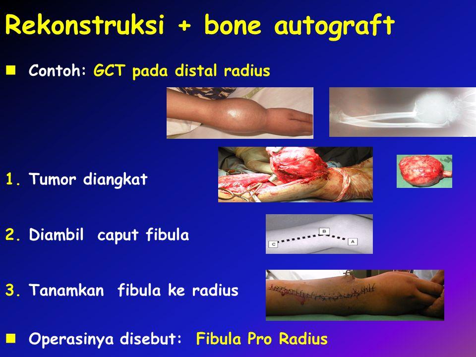 Rekonstruksi + bone autograft