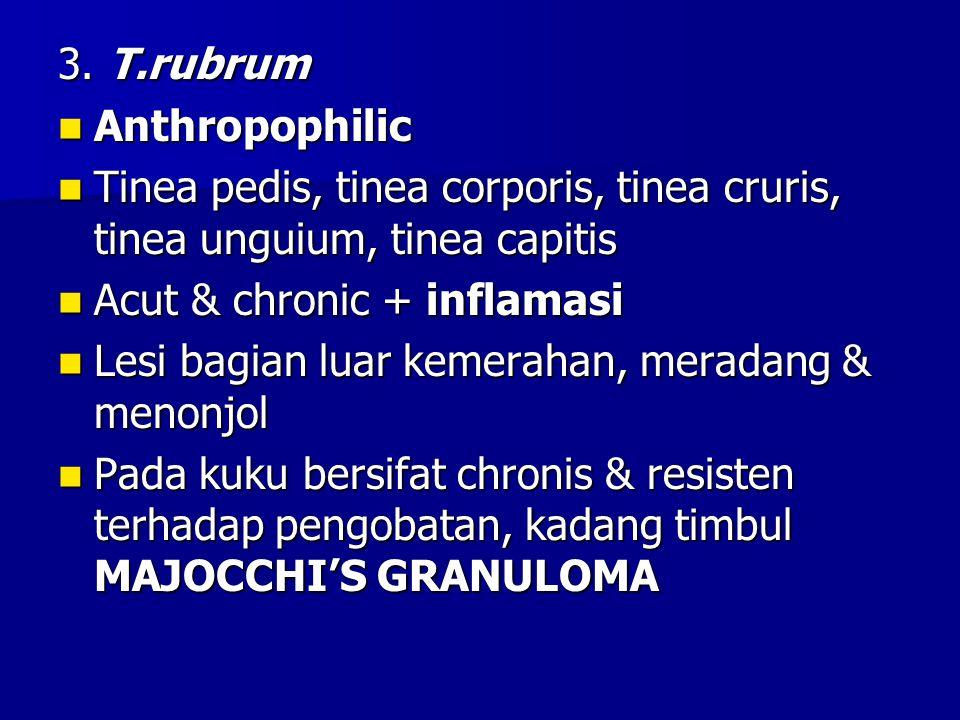 3. T.rubrum Anthropophilic. Tinea pedis, tinea corporis, tinea cruris, tinea unguium, tinea capitis.