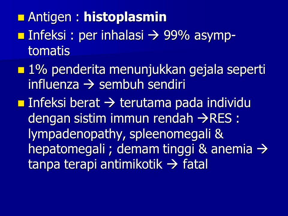 Antigen : histoplasmin