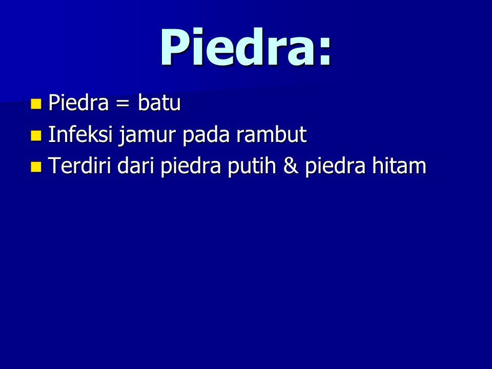 Piedra: Piedra = batu Infeksi jamur pada rambut