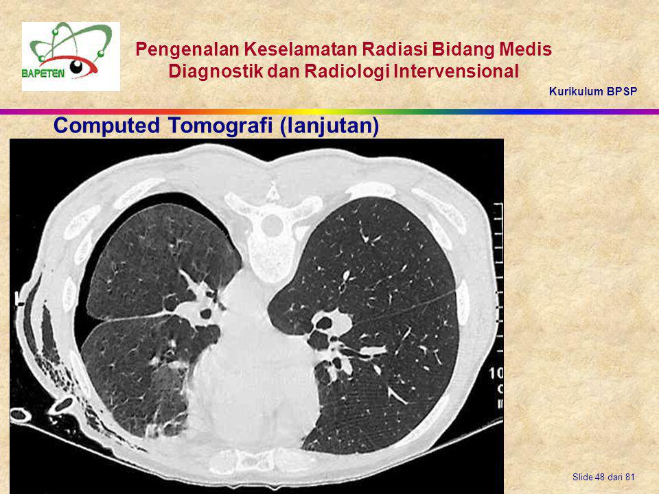 Computed Tomografi (lanjutan)
